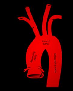 Сидром дуги аорты